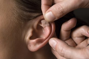 Auricular therapy